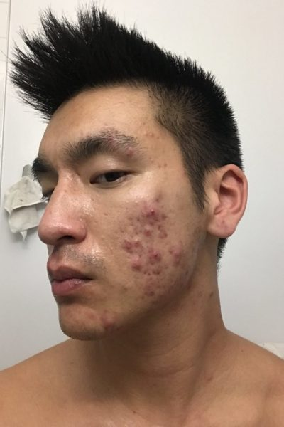 My Simplified Acne Routine