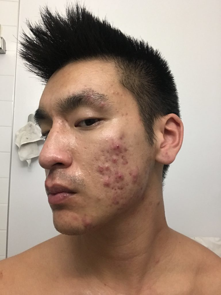 How I Finally Cleared my Acne and Got Better Skin - Shelby Naturals | Dylankyang